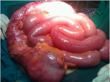 What is a colectomy surgery?